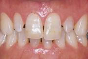 <p>前歯に隙間があります</p>