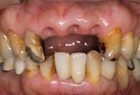 <p>治療期間中に事故に合い、前歯3本が抜けてしまいました</p>