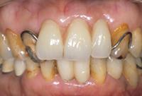 <p>仮の入れ歯・針金が目立ちます</p>