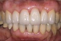 <p>白くきれいな歯が入りました</p>