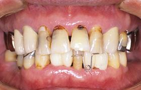 治療前のイメージ