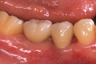 <p>人工歯根の上に固定されたセラミックの歯。天然歯と変わらない自然感があります。</p>