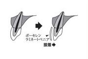 <p>歯の表面に薄いシェルを接着</p>